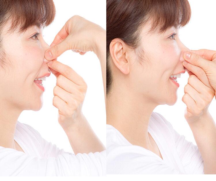 鼻 の 穴 を 小さく する 方法 小鼻縮小|小鼻・鼻翼・鼻の穴を小さくする治療法|品川美容外科【全...